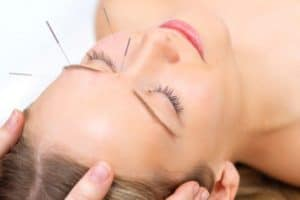 Cosmetic Acupuncture: A Beautiful Alternative